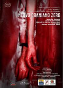 Nervo Craniano Zero